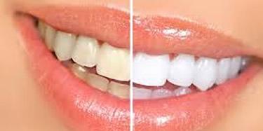 マイクロスコープ(歯科用顕微鏡)による歯を残す治療を行います